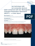 """A new veneer technique with  prefabricated composite denture teeth combined with the  """"Biologically Oriented Preparation Technique"""" (BOPT) – a case report.pdf"""