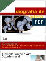 radiografia cadera.ppt