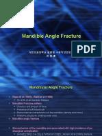 Mandible Angle Fracture 01