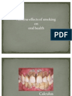 Smoking & Oral Health