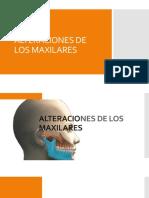 357667098-Alteraciones-de-Los-Maxilares.pptx