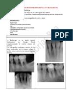 7 UNA RX en 3ros molares