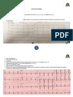 LECTURA EKG