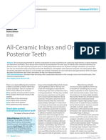 All ceramic inlays and onlays for posterior teeth
