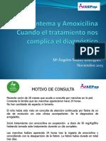 exantema_y_amoxicilina.cuando_el_tratamiento_dificulta_el_dtco.pdf