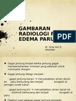1551845394SGL Edema Paru