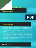 Proyección Transtoracica Lateral