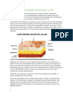 CARCINOMA BASOCELULAR.