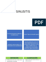 sinusitis Denise 2