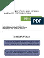 TRACCION Y RETRACCION DE CANINOS MAXILARES Y MANDIBULARES