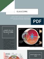 Presentación Glaucoma