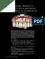 Crown Lengthening via biometric approach