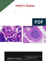 2 Warthin's Tumor