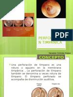 PERFORACION TIMPANICA.pptx