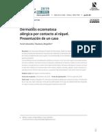 Dermatitis eczematosa alérgica por contacto al níquel. Presentación de un caso. Yuriet Alexandra Tibaduiza Mogollon