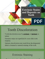 Extrinsic-Stains-and-Deposits-on-Teeth