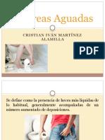 Diarreas Aguadas.pptx