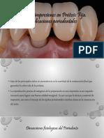 Toma de impresiones en Prótesis Fija (1).pdf