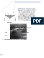 Atlas of Musculoskeletal Ultrasound Anatomy by Mike Bradley, Paul ODonnell (z-lib.org)_p116-156.en.fr.pdf