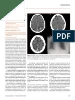 Trombosis venosa cerebral y SARS-CoV-2