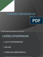 UC4 - Sistema Tegumentar -Tumores Benignos da Pele