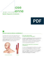 stenose-carotidienne