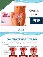 Cancer de cuello uterino