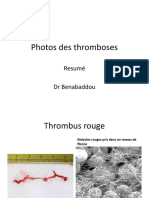 anapath3an_photos-thromboses