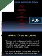 4. Gladis-Reparación de fracturas.pptx