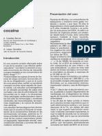 Dialnet-InfartoDeMiocardioYCocaina-6360792