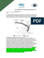 CAPSULOTOMÍA POSTERIOR. A. Tello  2020 V2.1