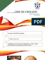 Síndrome de crouzon.pptm
