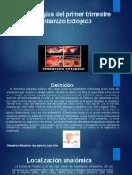 Embarazo Ectópico Diapositivas karelys