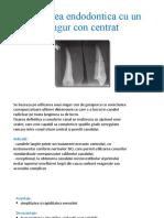 Obturarea endodontica cu un singur con centrat