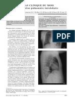 Séquestration pulmonaire MAR