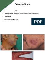 Dermatomicosis II