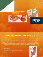 SEMINARIO ULCERA PEPTICA - POSTGRADO
