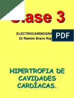 EKG Clase 3