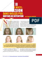 Classe II en denture mixte  propulsion sans bielles PSB. moyens de rétention