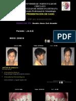 caso clinico niño.pptx