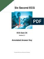 6 sec ECG