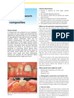 Worn Out Dentition