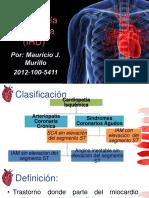 cardiopatiaisquemica-170521025050