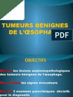 TUMEURS BENIGNES DE L'ŒSOPHAGE.pptx