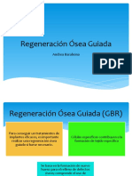 Regeneración Ósea Guiada