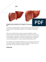 cirrosis hepaticaalcoholica