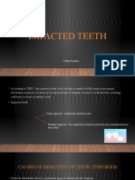 IMPACTED TEETH
