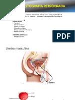 URETROCISTOGRAFIA RETRÓGRADA E ESFORÇO.pdf