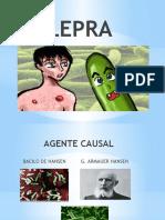 DIAPOSITIVA DE LEPRA