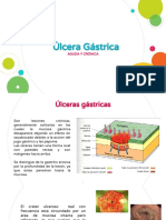 Ulcera Gástrica Aguda y Crónica